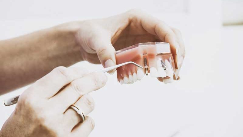 Implantologia Dentale Milano